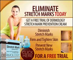 Dermology Stretch Marks Removal Cream Review