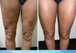 Cellulite Treatments Review