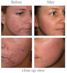 Exposed Skin Care Acne Treatment before after photos