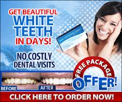 Bella Teeth Whitening Kits Review