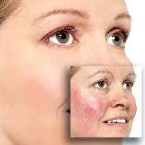 Rosacea Treatment Creams Review