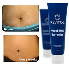 Revitol Stretch-Mark Solution Review