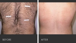 body hair removal cream review