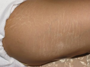 Dermology stretchmarks removal creams